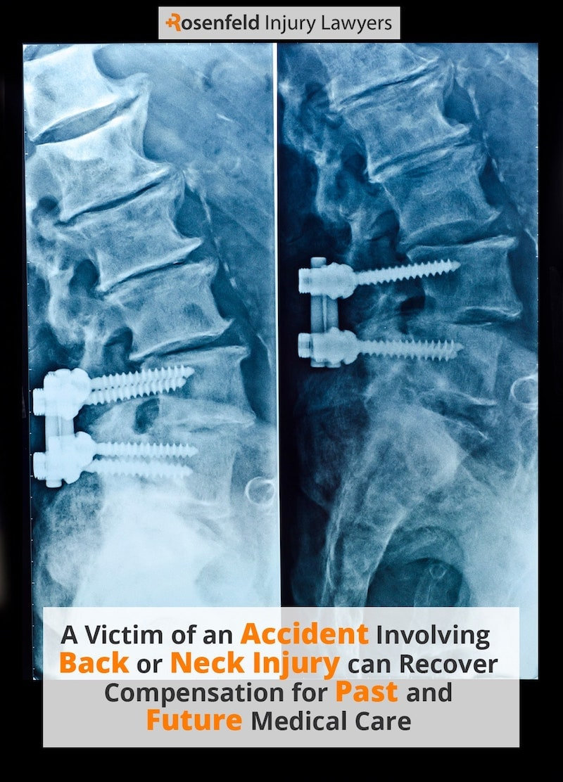 Chicago Back and Neck Injury Lawyers