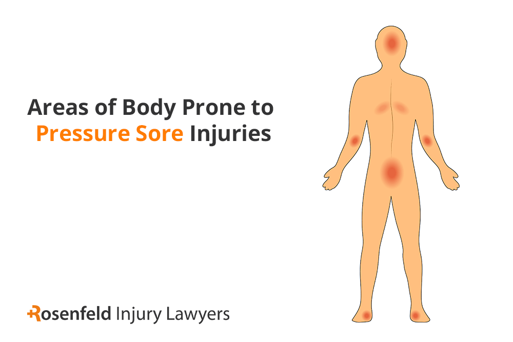 Chicago pressure sore injury lawyer