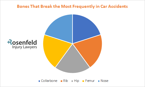 Chart bone break on auto accident