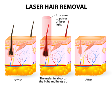 Complications from Laser Hair Removal
