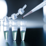 Stem Cell can help people with Cerebral Palsy