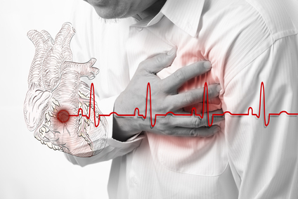 Heart Attacks may be linked to  Testosterone Supplements