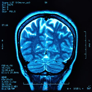 Bariatric Surgery Leading to Brain Damage