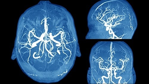 Aneurysm Diagnosis Failure Malpractice