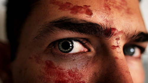 Facial Injuries Result Care Accident