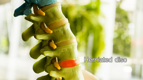 Herniated Disc Result Car Accident
