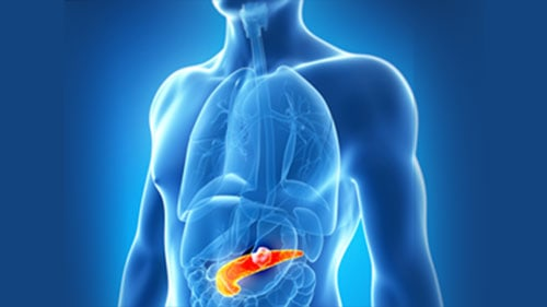 Pancreas Cancer Blood Sugar