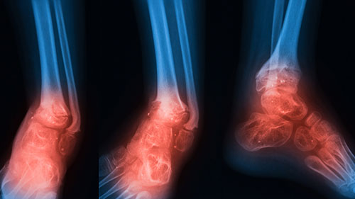 Osteomyelitis Infection In Bones Joints