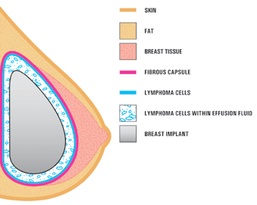 Breast Implant Cancer Graphic