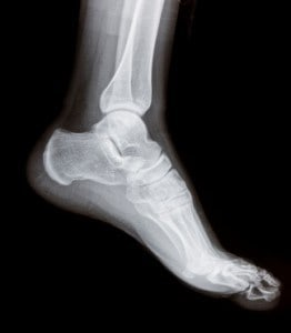 Broken Ankle