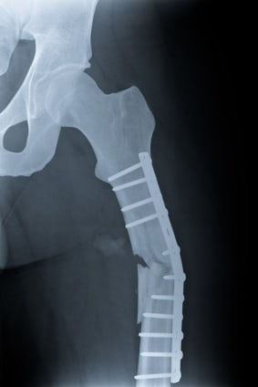 broken leg Bone Fractures: Young, Old, Physicians Need To Diagnose and Treat Fractures To Avoid Serious Complications