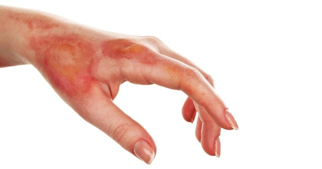 Burn Injury FAQs