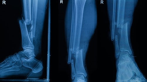 Ankle Fracture Auto Accident
