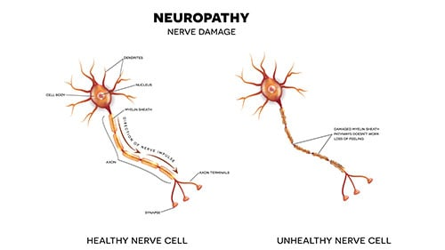 Nerve Damage Lifelong Pain