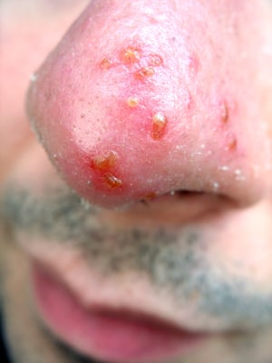 Cold Therapy Injury