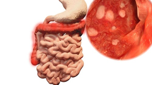 Bowel Disease Inflammation