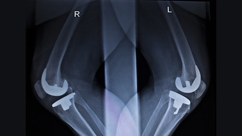 Depuy Knee Complications