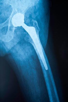 DePuy Hip Recall Lawsuits