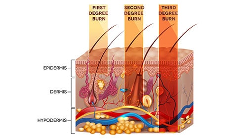 Diagram Showing First Second Third Degree Burns
