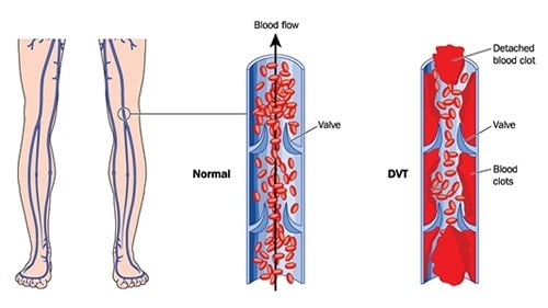 DVT Diagnosis Lawsuit