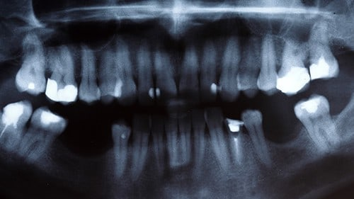 Dental Facial Fracture Car Accident