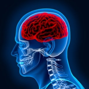 Malpractice Claims for Brain Infections