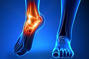 foot ankle injury settlement case value car accident