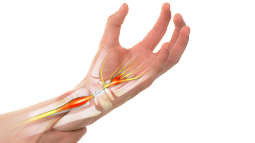 Carpal Tunnel Hand Pain
