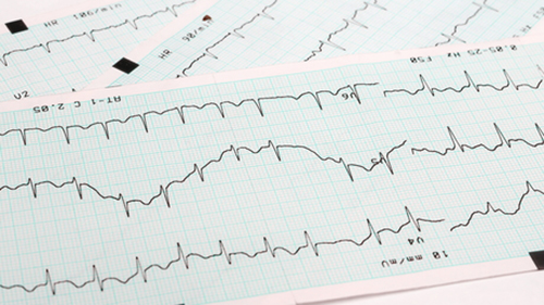 Inability Diagnose Arrhythmias