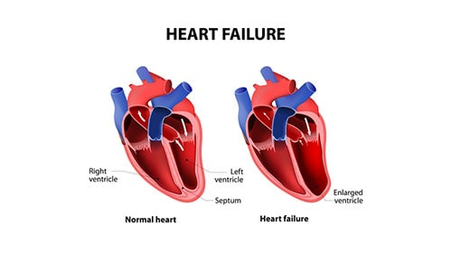 Diagram Illustration Heart Failure