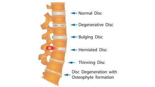 Auto Accident Herniated Disc