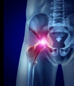 Surgery to Revise a Hip