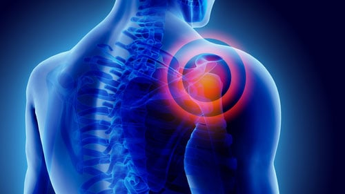 Problems With Shoulder Joint Movement