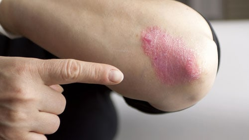 Dry Skin Patches Psoriasis