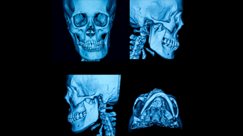 Implant On Jaw Bone Helps Strengthen