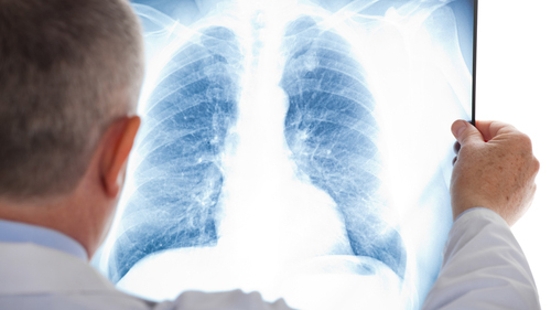 Compensation For Lung Injuries