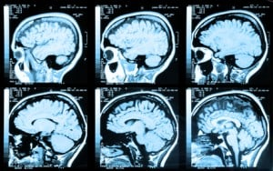Signs of Brain Injury