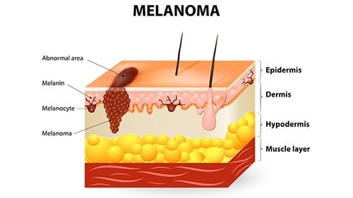 Melanoma Diagnosis Error Malpractice