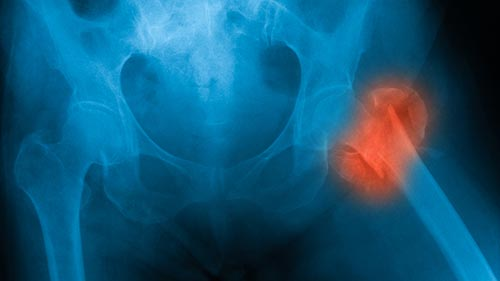 How Do Bones Break And What Are The Most Common Forms Of Broken Bones?