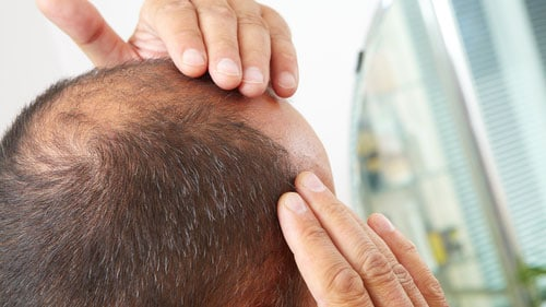 Baldness Medication Sexual Problems