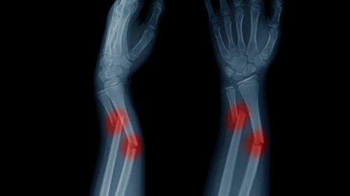 What Is Bone Fracture Case Worth Injury