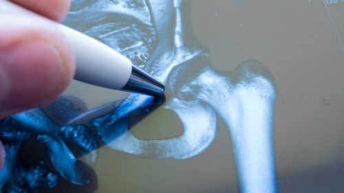 Bone Cement Implantation Syndrome Bcis Information On