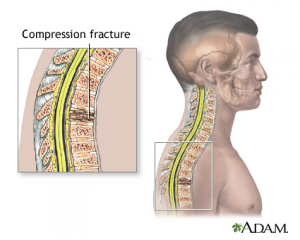 Cervical/Lumbar Compression Fractures