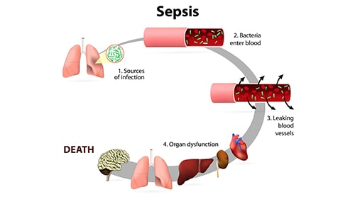Sepsis Xeljanz Death Lawsuit Illustration