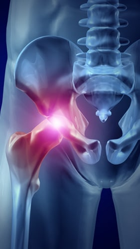 Should I hire a lawyer for a case involving my Stryker hip implant?