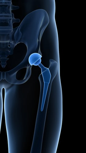 What are signs that my Stryker hip implant has failed or is defective?