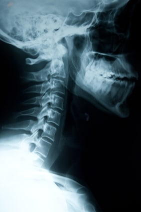 Spinal Cord Injury Caused By Defective Products