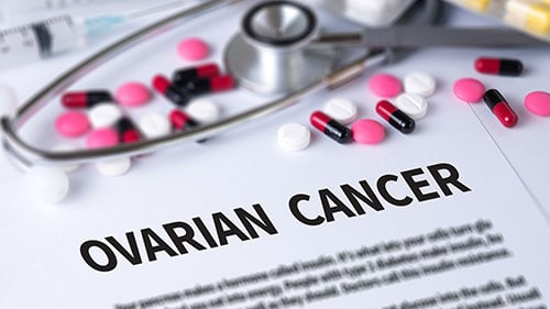 What are Some Symptoms of Ovarian Cancer?