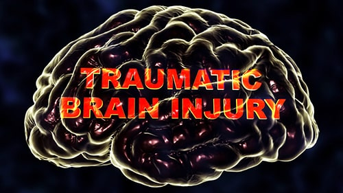resources-for-traumatic-brain-injury-tbi-victims