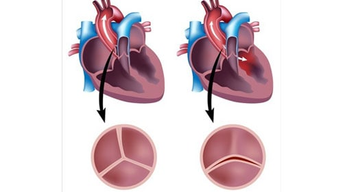 Tricuspid Valve Narrows Low Blood Flow